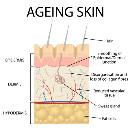 epidermis: Old skin anatomy characterized by presence of age spots and wrinkles caused by loss of collagen fibers, atrophy of epidermis and blood vessels.