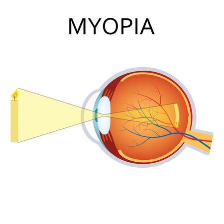 Myopia is being short sighted. Far away object seems blurry. Detailed anatomy of the eye.
