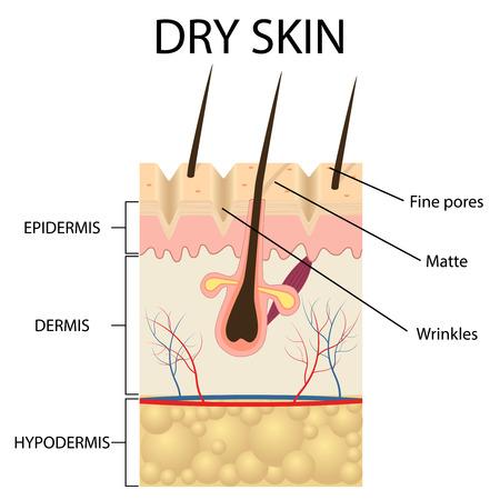 Illustratie van de lagen van een droge huid op de witte achtergrond.