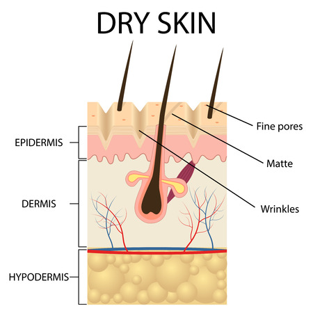 dermatologist: Illustration of The layers of dry skin on the white background.