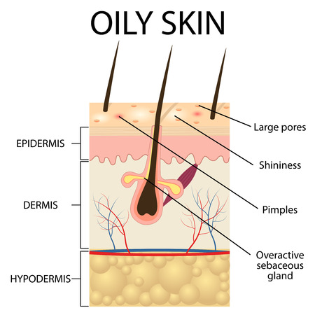 sebum: Illustration of The layers of oily skin on the white background.