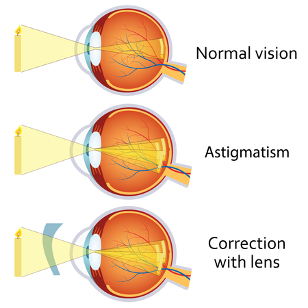 Astigmatism corrected by a cylindrical lens. Eyesight problem, blurred vision. Anatomy of the eye, cross section. Illustration