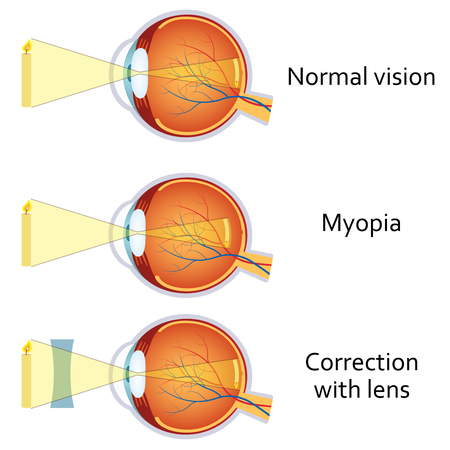 shortsightedness: Myopia and myopia corrected by a minus lens. Eye vision disorder.