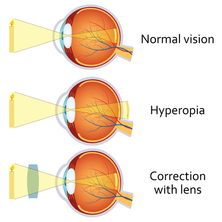 farsighted: Hyperopia and Hyperopia corrected by a plus lens. Eye vision disorder.