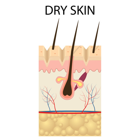 dry skin: Illustration of The layers of dry skin on the white background.