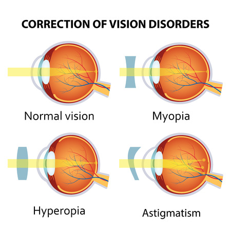 nearsighted: Correction of various eye vision disorders by lens. Hyperopia, myopia and astigmatism.