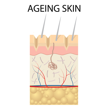 atrophy: Old skin anatomy characterized by presence of age spots and wrinkles caused by loss of collagen fibers, atrophy of epidermis and blood vessels.