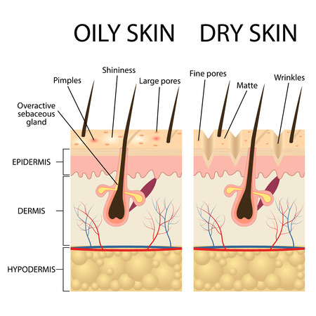 oily: Human Skin types and conditions. Dry and oily. A diagrammatic sectional view of the skin.