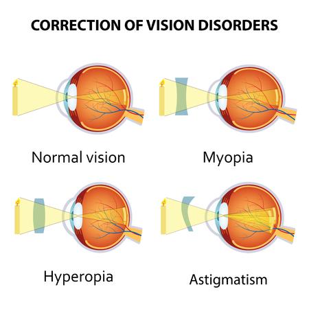hyperopia: Correction of various eye vision disorders by lens. Hyperopia, myopia and astigmatism.