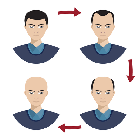 Information chart showing four stages of hair loss for men. Bolding head from full hair cover to a final stage of baldness.