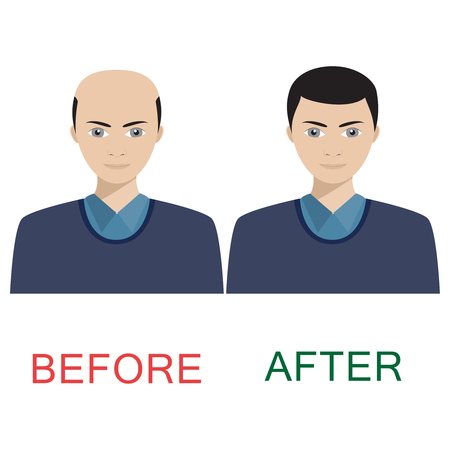 restored: Man with alopecia before and after hair treatment and transplantation. Illustration