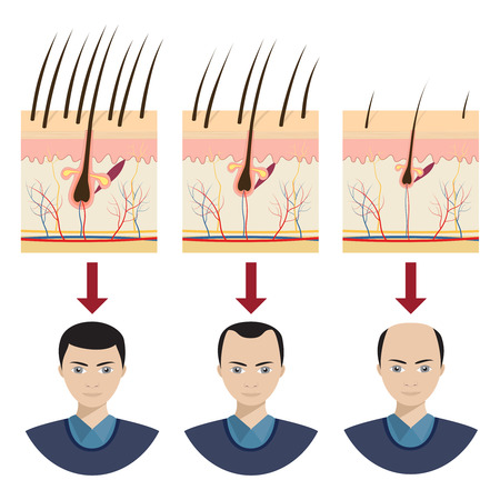 Hair loss stages with male portraits. Vector illustration. Illustration