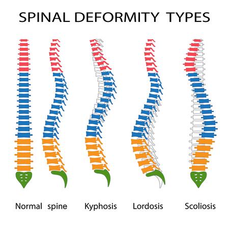脊柱変形の種類のイラスト。後弯、前弯および脊柱側弯症。