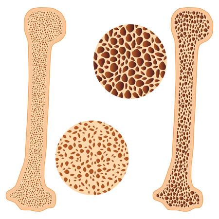 Ilustración de hueso de osteoporosis y hueso sano en el fondo blanco.