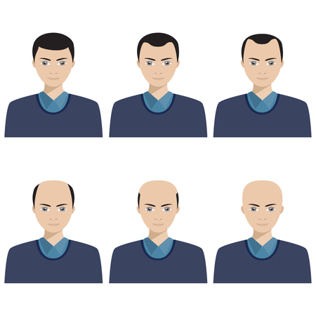 Hair loss stages and types of baldness illustrated on a male head.
