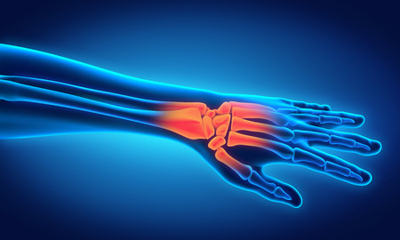 arm pain: Human Hand Anatomy Illustration Stock Photo