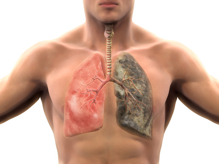 Healthy Lung and Smokers Lung Stock Photo