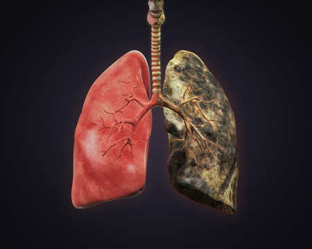 lung bronchus: Healthy Lung and Smokers Lung Stock Photo