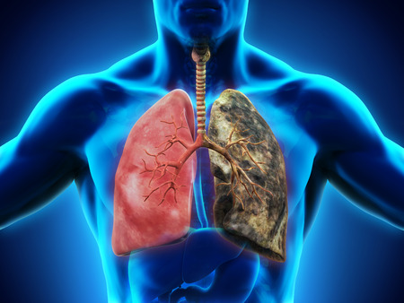 respiration: Healthy Lung and Smokers Lung Stock Photo