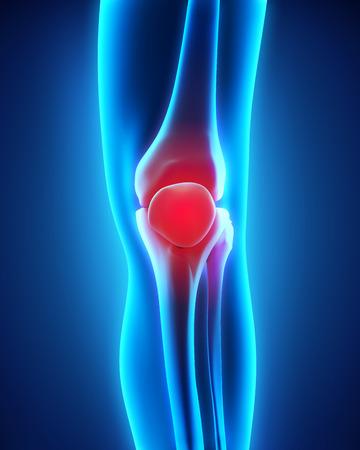 Painful Knee Illustration illustration