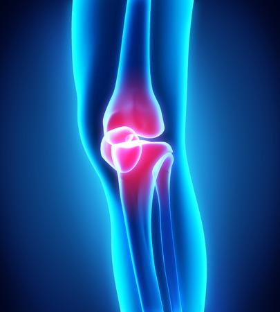Ilustración dolorosa de la rodilla Foto de archivo - 30847857