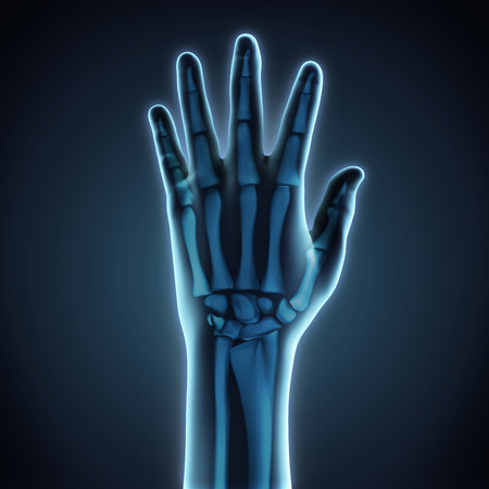 545 Skeletal Hand Injury Cliparts Stock Vector And Royalty Free