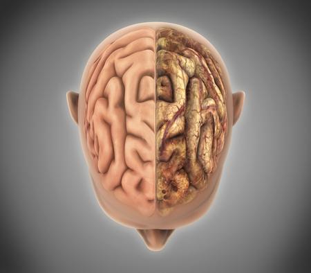 anatomia humana: El cerebro sano y el cerebro no saludable Foto de archivo