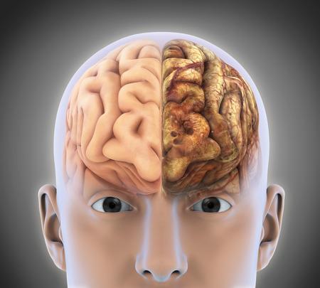 cerebro: El cerebro sano y el cerebro no saludable Foto de archivo