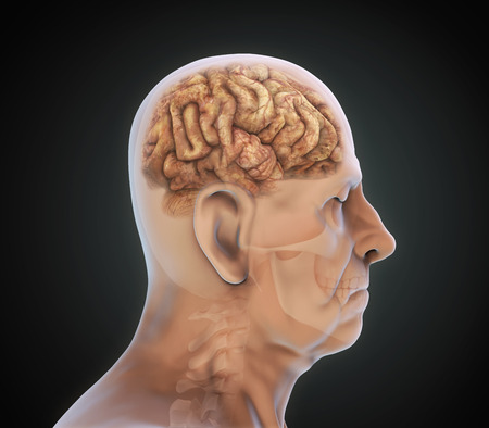 injuries: Elderly Male with Unhealthy Brain