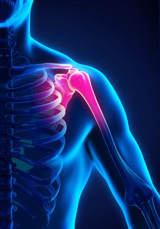 bursitis: Painful Shoulder Illustration