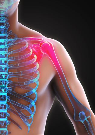 rotator: Painful Shoulder Illustration