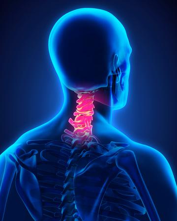 痛みを伴う頸椎 写真素材