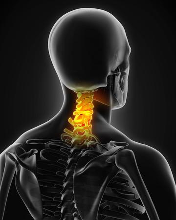 cervical: Painful Cervical Spine