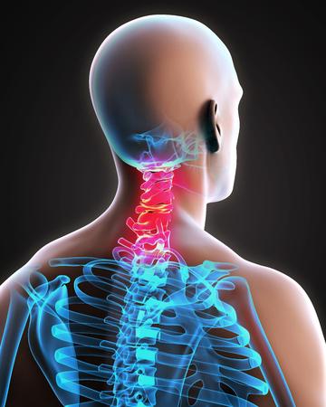 inflamed: Painful Cervical Spine