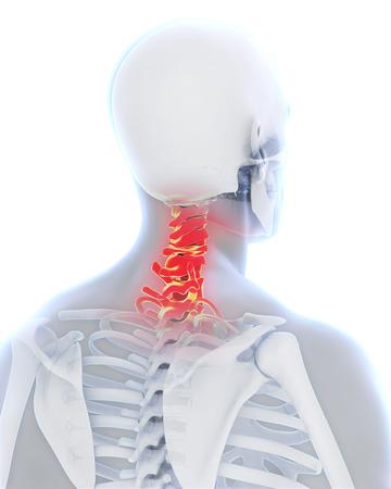 columna vertebral: Columna cervical dolorosa Foto de archivo