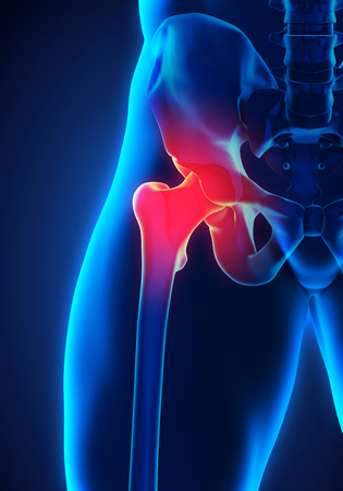 osteoporosis: Painful Hip Joint
