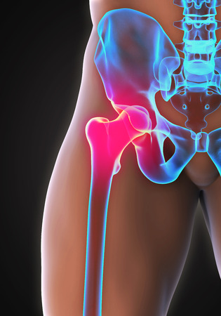 hip joint: Painful Hip Joint