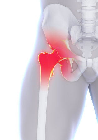 hip: Painful Hip Joint