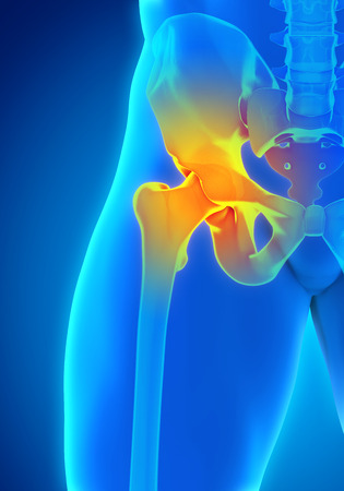 acetabulum: Painful Hip Joint