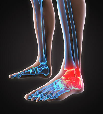 x ray: Painful Ankle Illustration Stock Photo