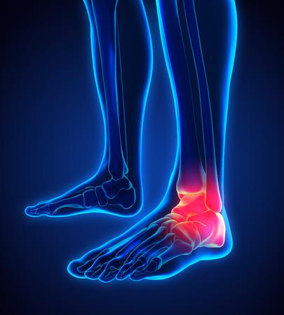 痛みを伴う足の図
