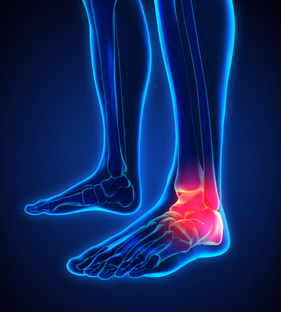 inflamed: Painful Ankle Illustration Stock Photo