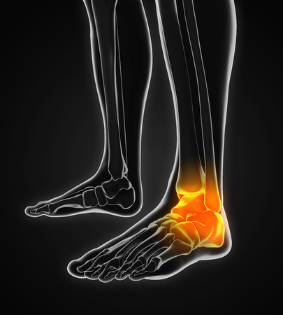 talus: Painful Ankle Illustration Stock Photo