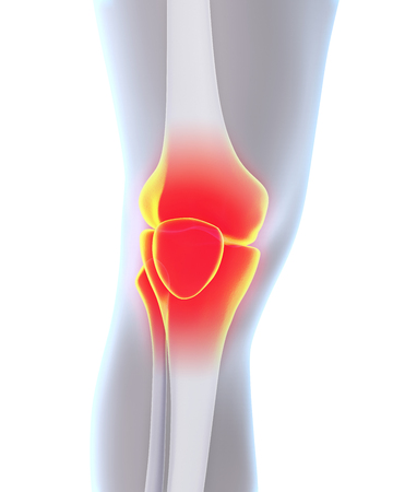 kneecap: Painful Knee Illustration Stock Photo