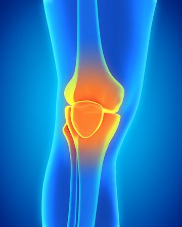 articulaciones: Ilustración dolorosa de la rodilla Foto de archivo
