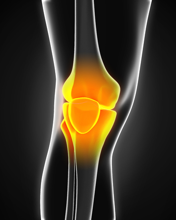 cartilage: Painful Knee Illustration Stock Photo