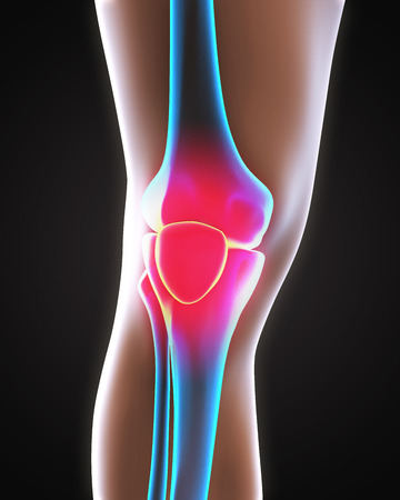 human knee: Painful Knee Illustration Stock Photo