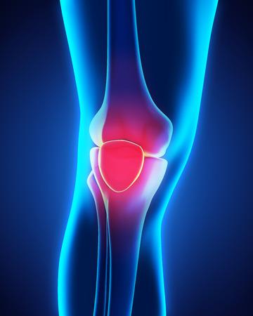 de rodillas: Ilustración dolorosa de la rodilla Foto de archivo