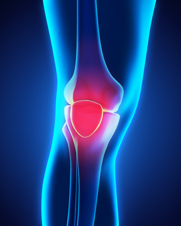 painful: Painful Knee Illustration Stock Photo