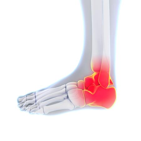 metatarsal: Painful Ankle Illustration Stock Photo